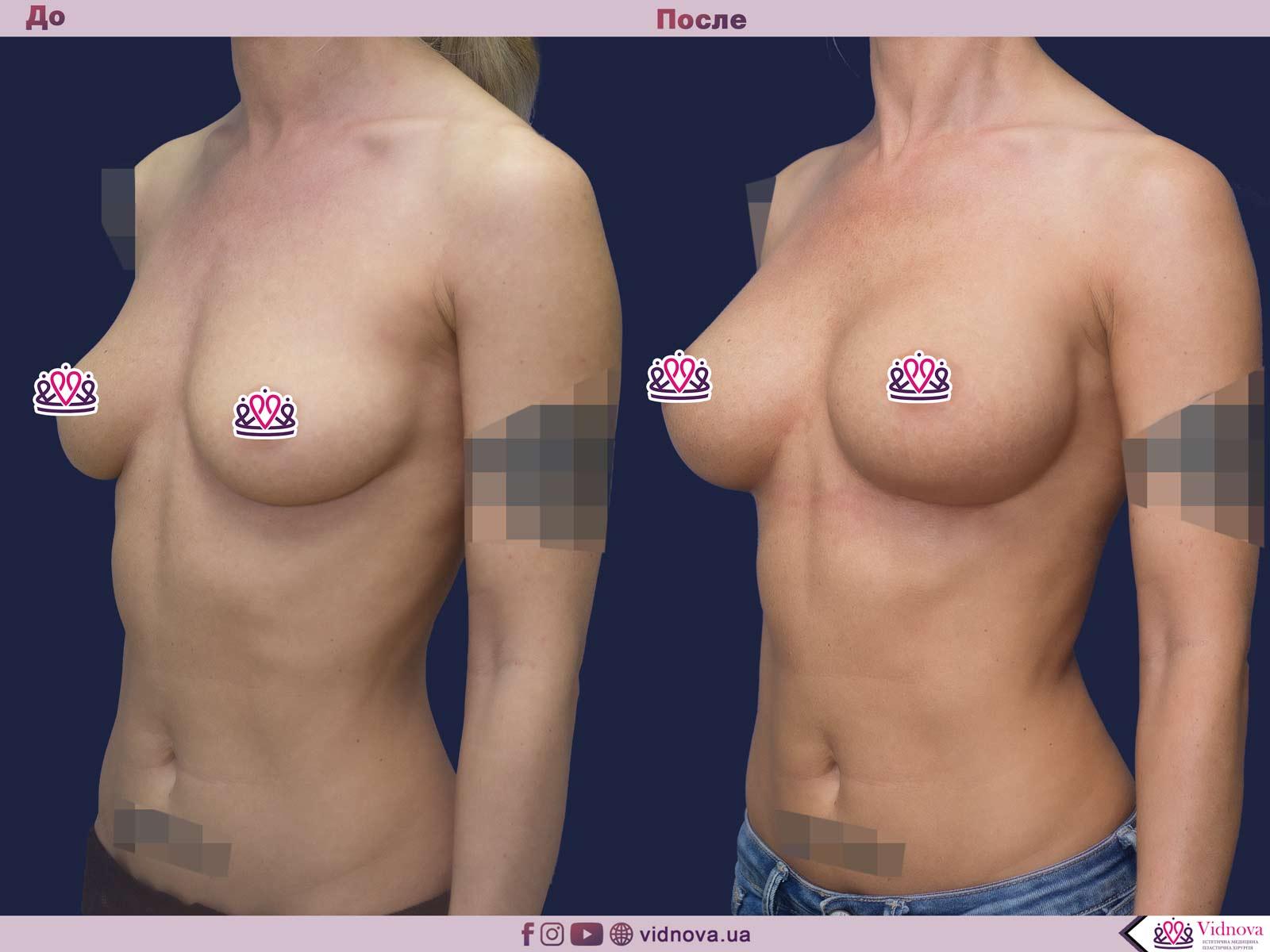 Пластика груди: результаты до и после - Пример №45-1 - Светлана Работенко