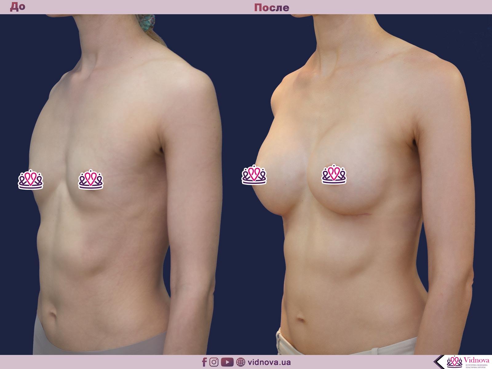 Пластика груди: результаты до и после - Пример №44-1 - Светлана Работенко