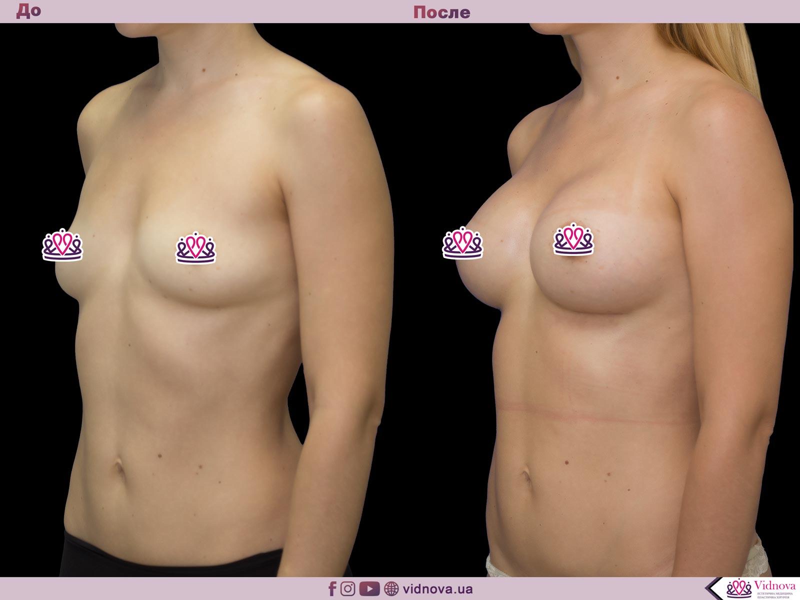 Пластика груди: результаты до и после - Пример №47-1 - Светлана Работенко