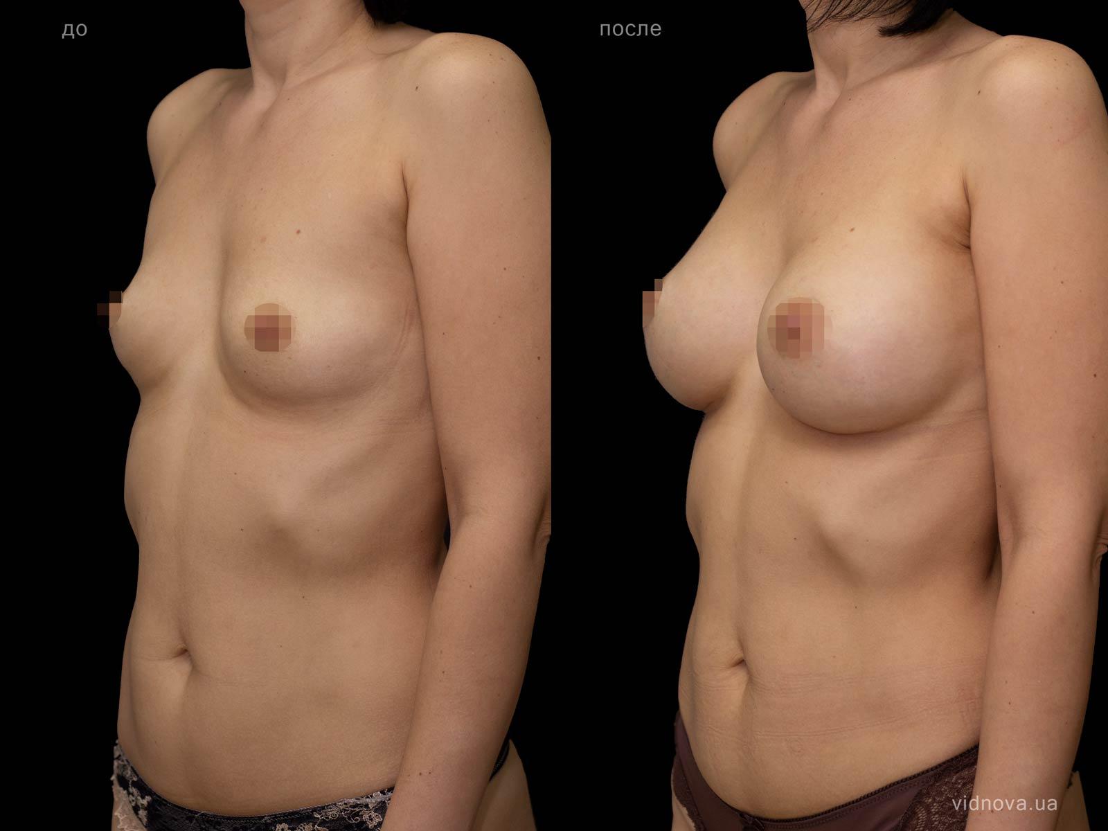 Пластика груди: результаты до и после - Пример №101-1 - Светлана Работенко