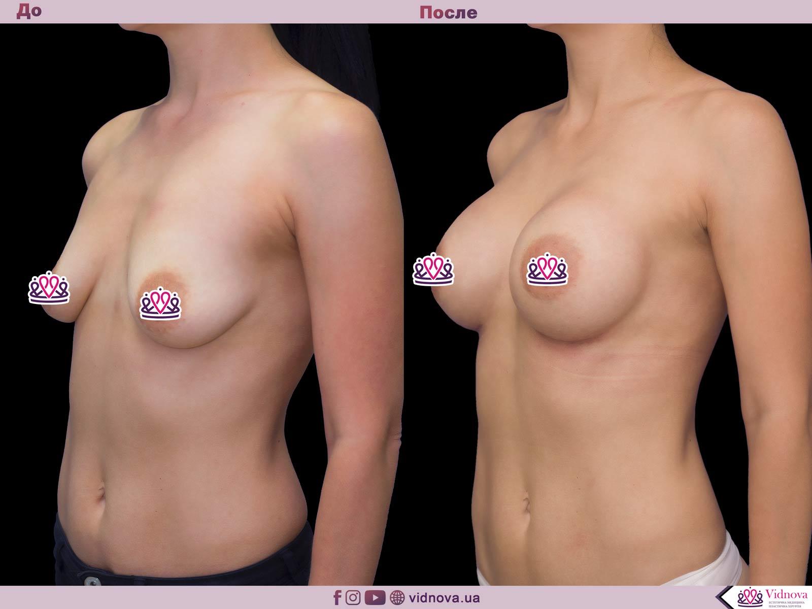 Пластика груди: результаты до и после - Пример №48-1 - Светлана Работенко