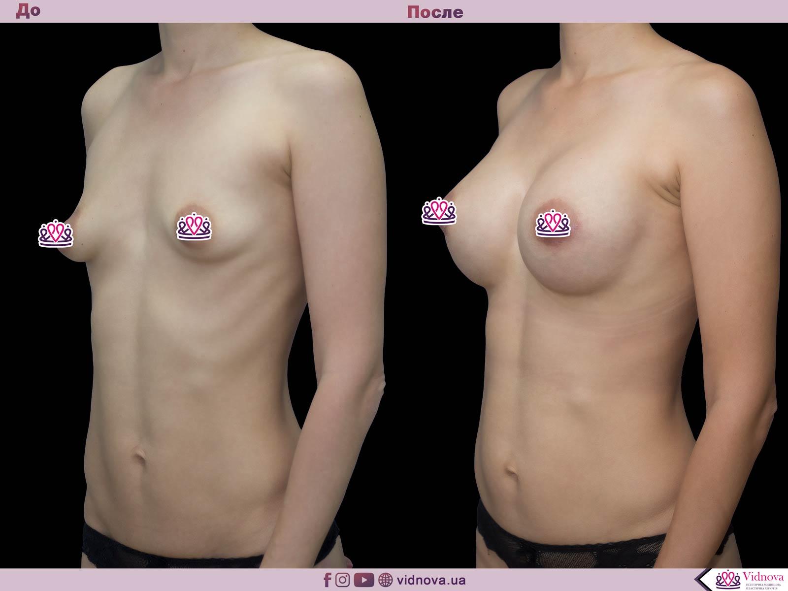 Пластика груди: результаты до и после - Пример №49-1 - Светлана Работенко