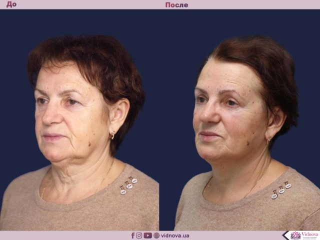 Подтяжка лица и шеи: до-после