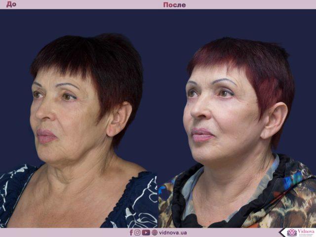 Подтяжка лица и шеи 2 67 640x480