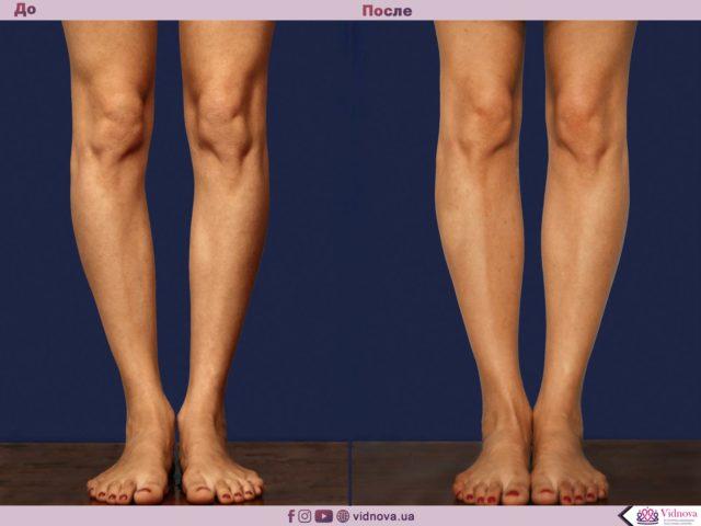 Пластика ног (круропластика) в Запорожье 2 69 640x480
