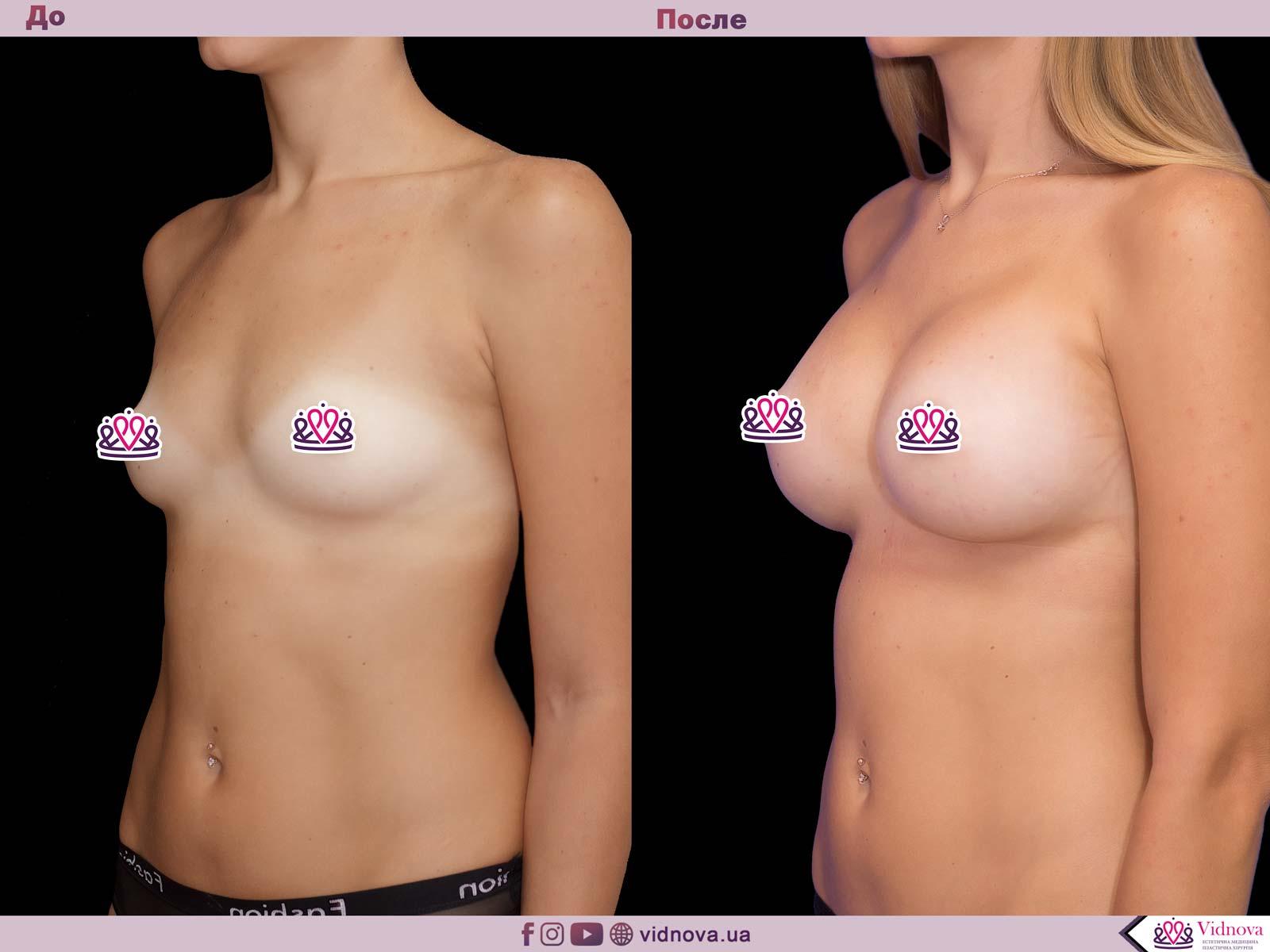 Пластика груди: результаты до и после - Пример №53-1 - Светлана Работенко