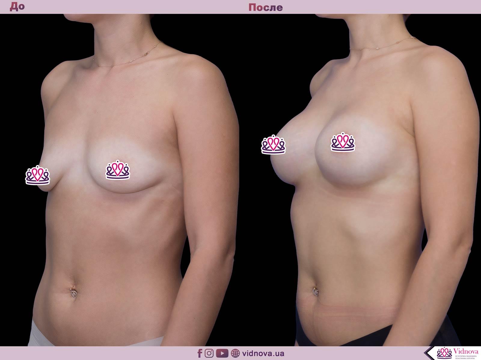 Пластика груди: результаты до и после - Пример №52-1 - Светлана Работенко
