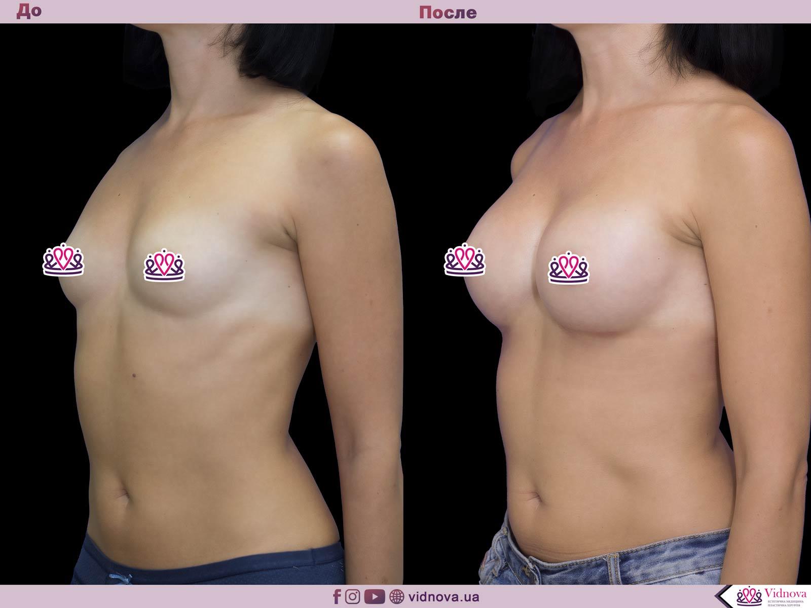 Пластика груди: результаты до и после - Пример №51-1 - Светлана Работенко