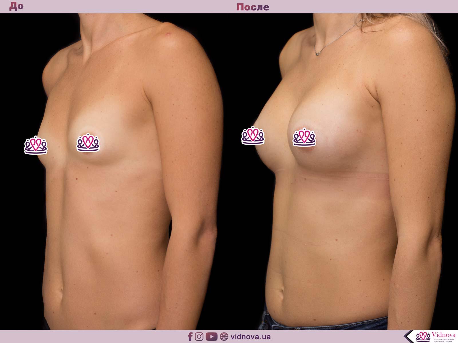 Пластика груди: результаты до и после - Пример №57-1 - Светлана Работенко
