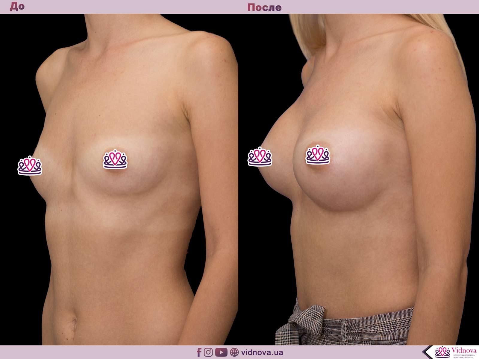 Пластика груди: результаты до и после - Пример №56-1 - Светлана Работенко