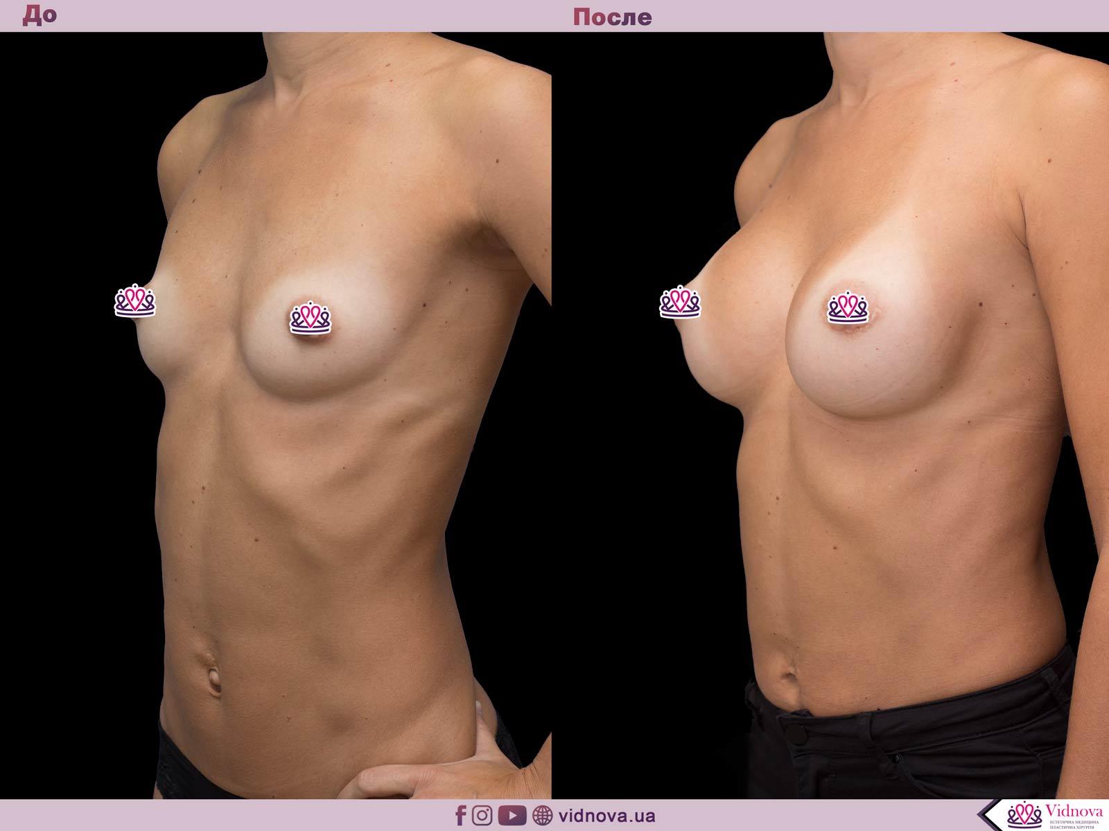 Пластика груди: результаты до и после - Пример №55-1 - Светлана Работенко