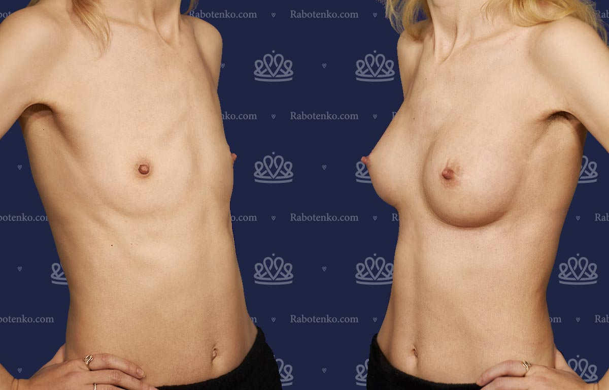 Пластика груди: результаты до и после - Пример №1-0 - Светлана Работенко
