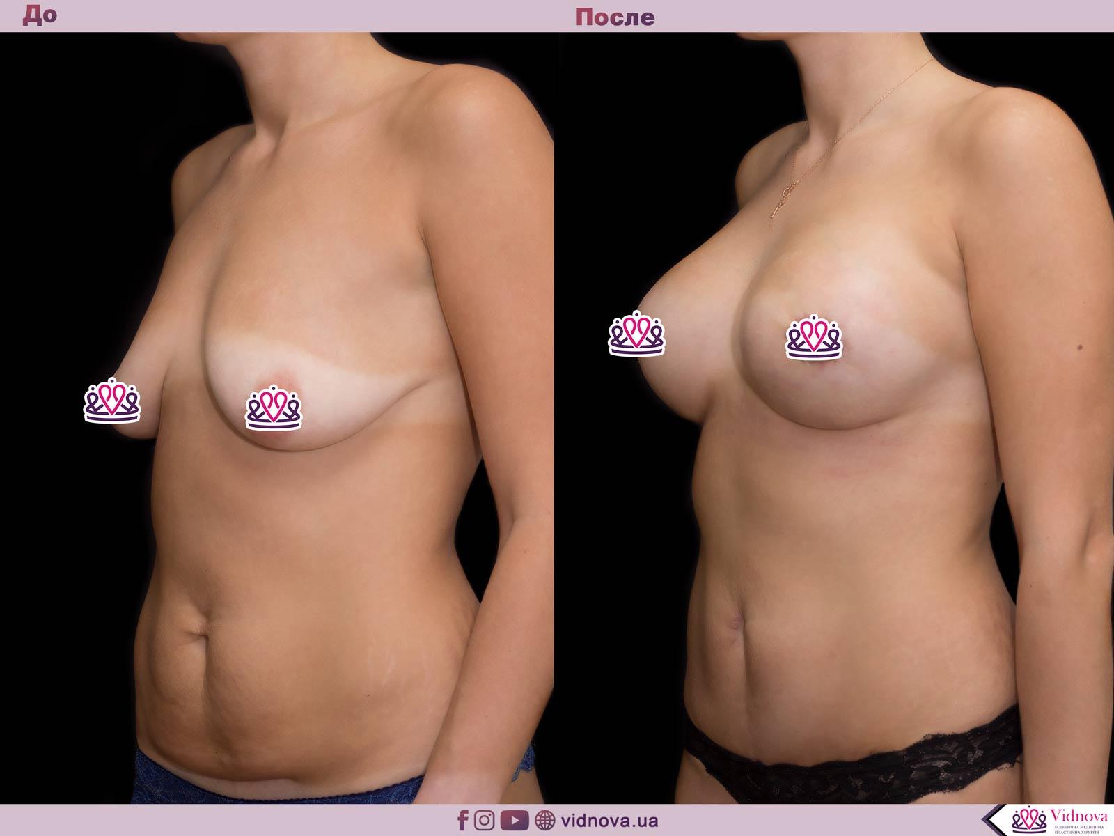 Пластика груди: результаты до и после - Пример №61-1 - Светлана Работенко
