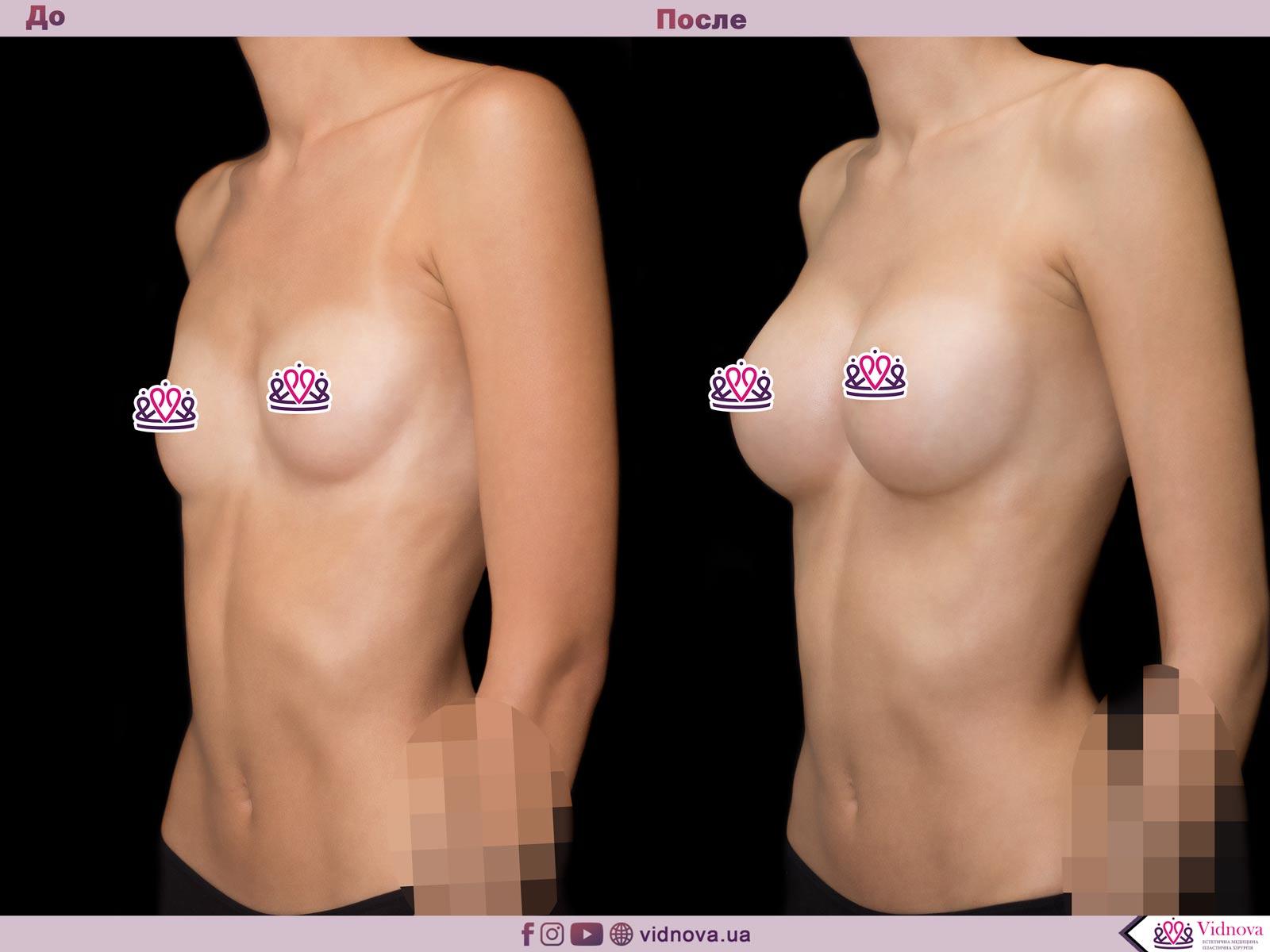 Пластика груди: результаты до и после - Пример №60-1 - Светлана Работенко