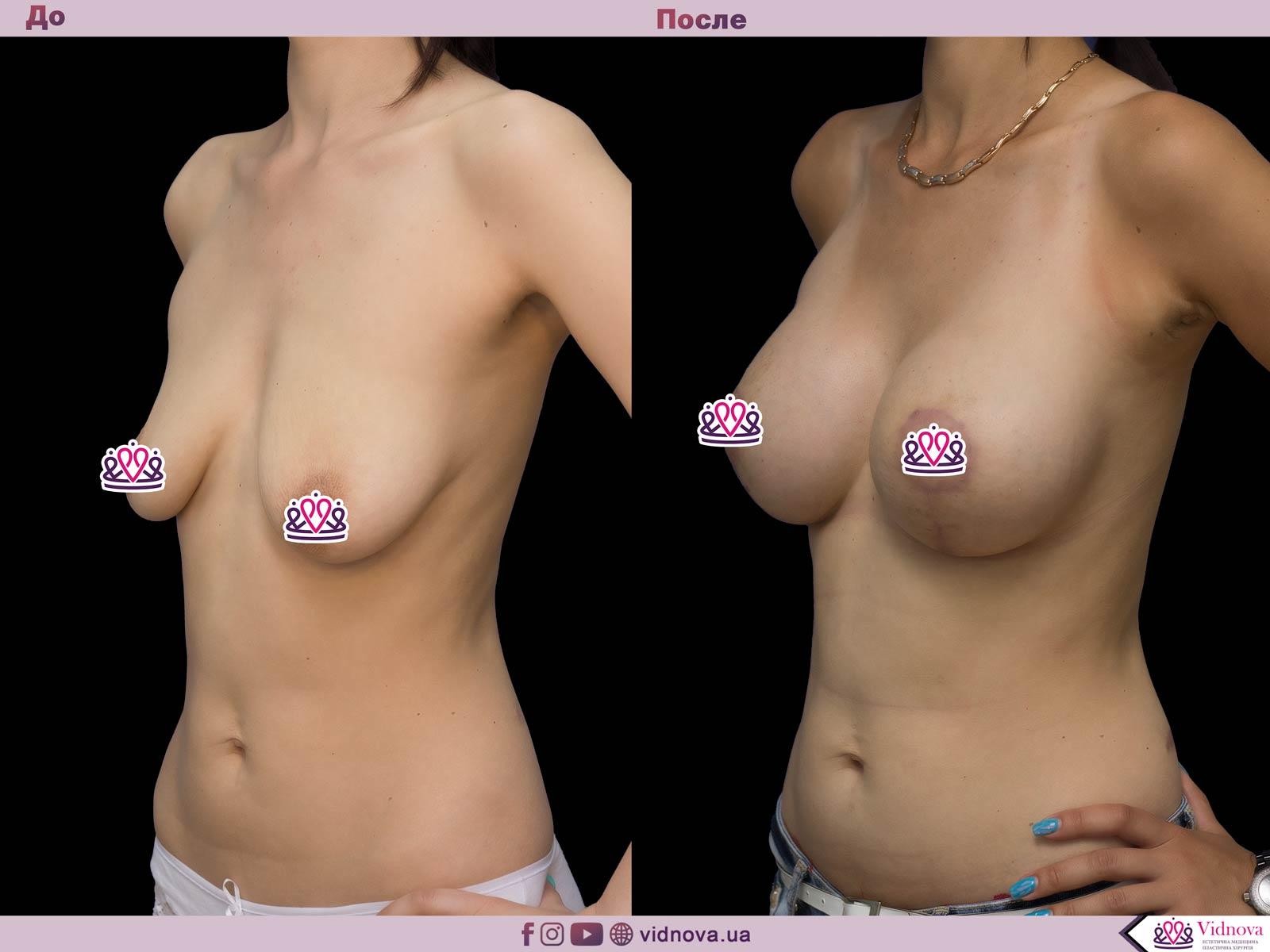 Пластика груди: результаты до и после - Пример №58-1 - Светлана Работенко