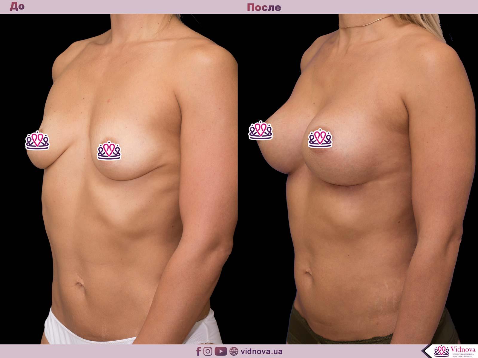 Пластика груди: результаты до и после - Пример №64-1 - Светлана Работенко