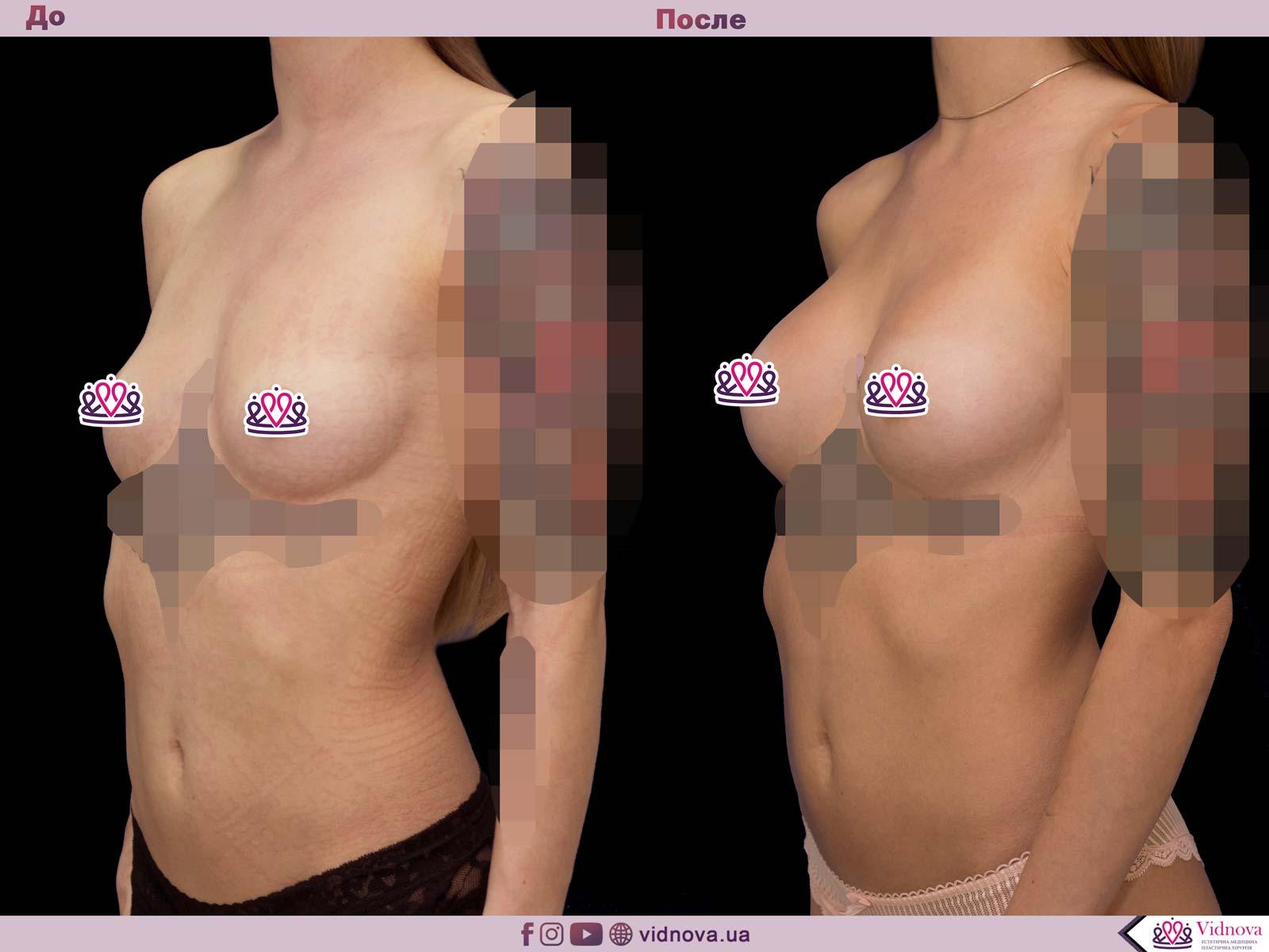Пластика груди: результаты до и после - Пример №63-1 - Светлана Работенко