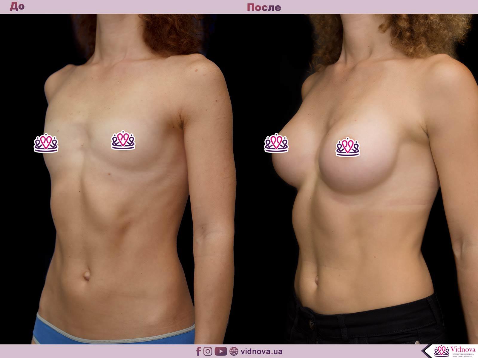 Пластика груди: результаты до и после - Пример №65-1 - Светлана Работенко