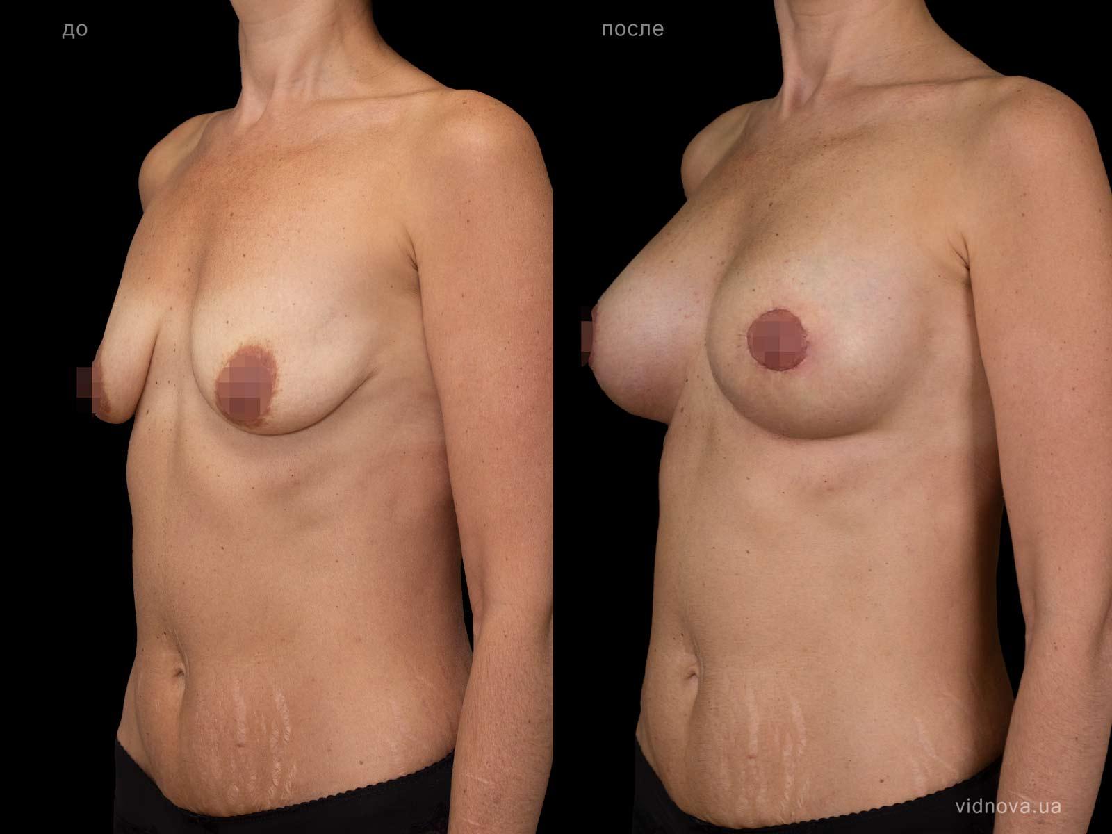 Пластика груди: результаты до и после - Пример №103-1 - Светлана Работенко