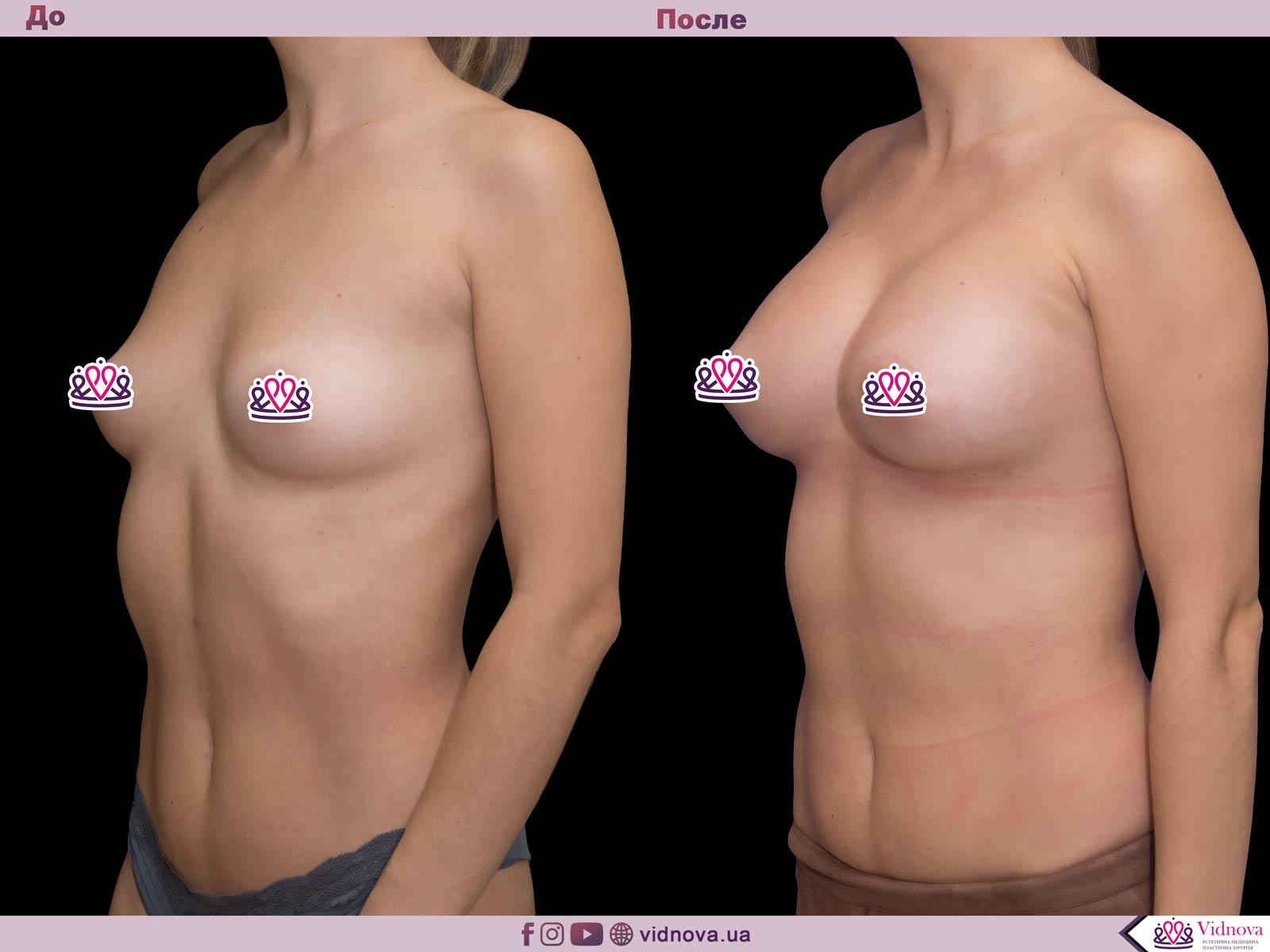 Пластика груди: результаты до и после - Пример №62-1 - Светлана Работенко