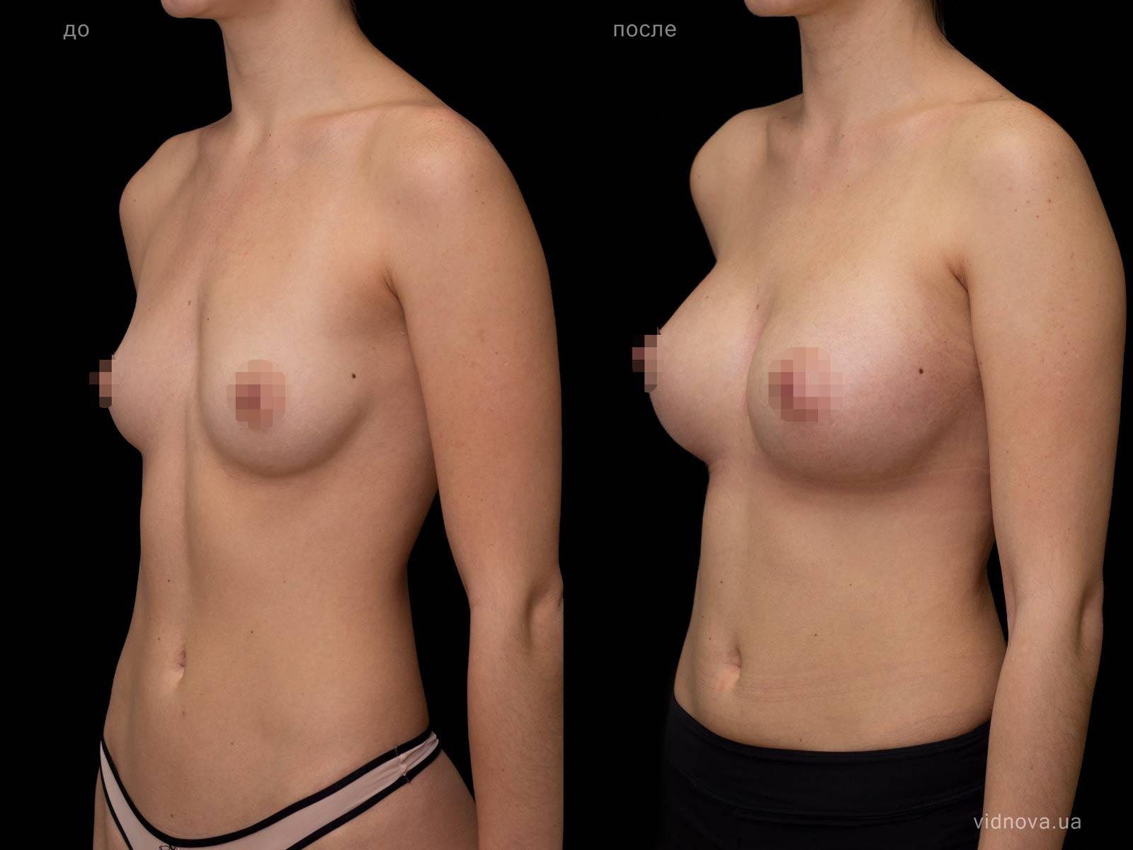 Пластика груди: результаты до и после - Пример №74-1 - Светлана Работенко