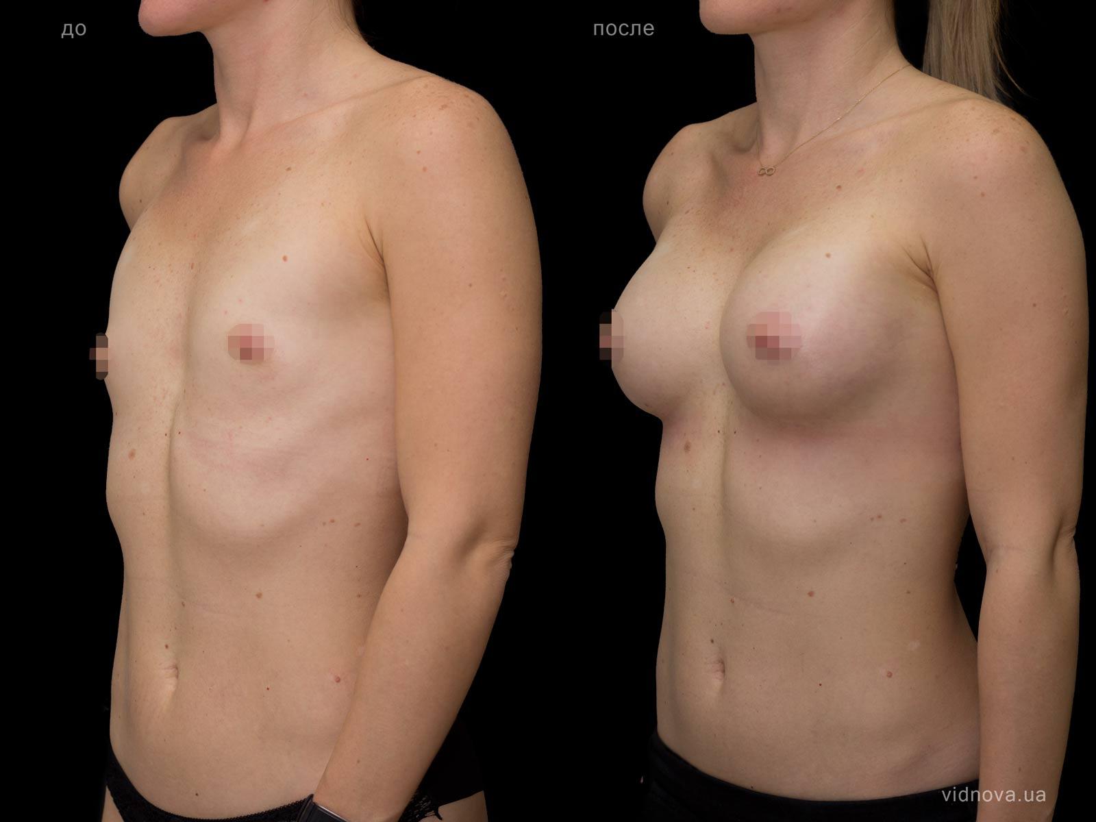 Пластика груди: результаты до и после - Пример №70-1 - Светлана Работенко