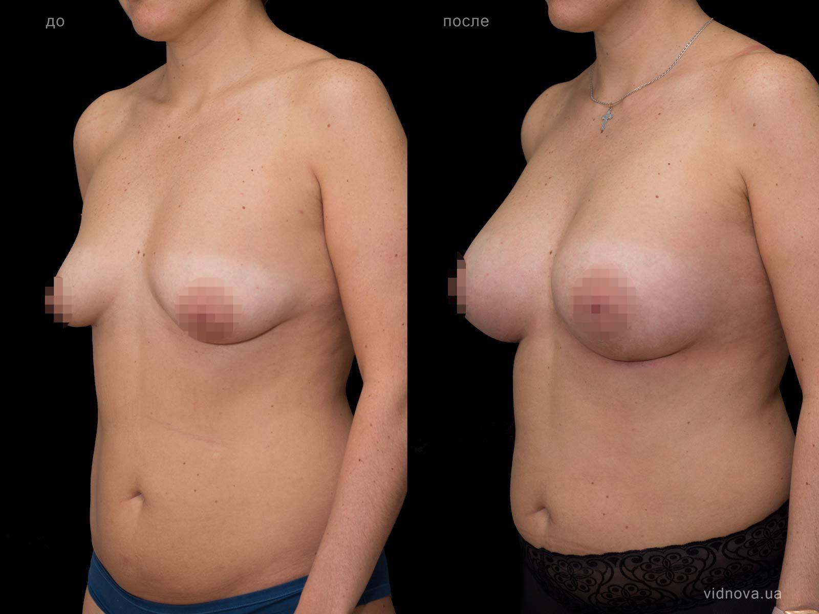 Пластика груди: результаты до и после - Пример №68-1 - Светлана Работенко