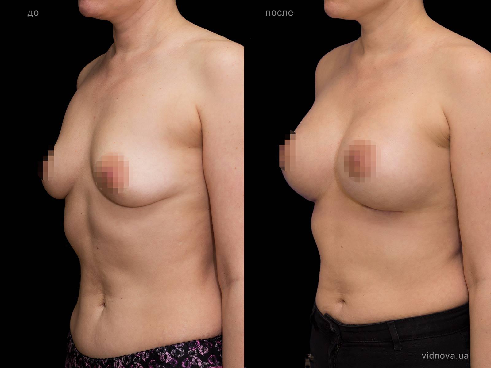 Пластика груди: результаты до и после - Пример №69-1 - Светлана Работенко