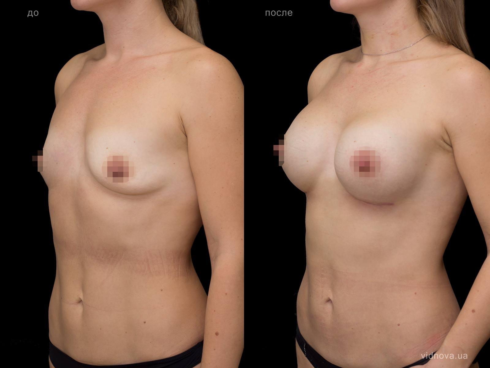 Пластика груди: результаты до и после - Пример №71-1 - Светлана Работенко
