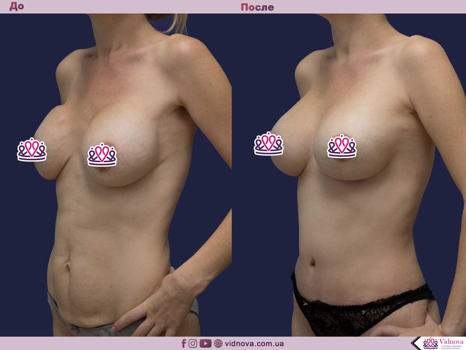 Пластика груди: результаты до и после - Пример №13-1 - Светлана Работенко