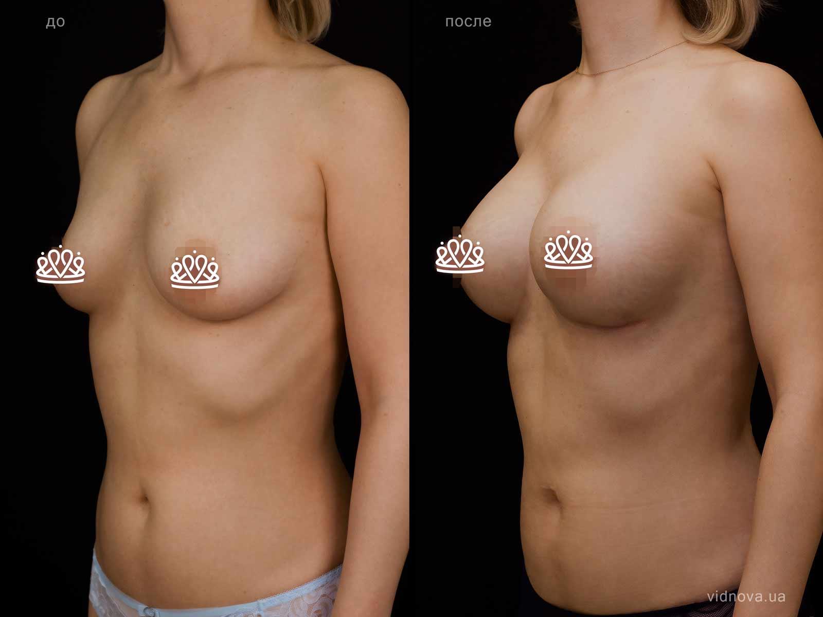 Пластика груди: результаты до и после - Пример №121-1 - Светлана Работенко