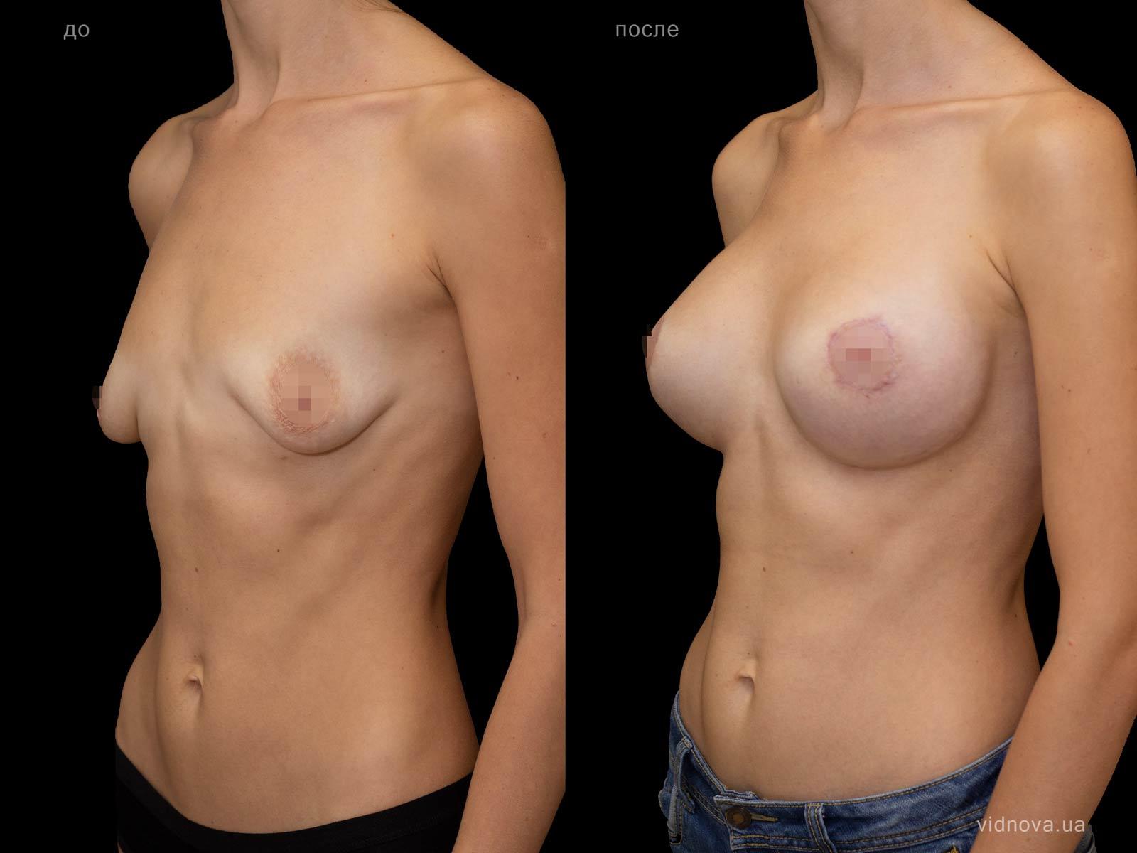 Пластика груди: результаты до и после - Пример №98-1 - Светлана Работенко