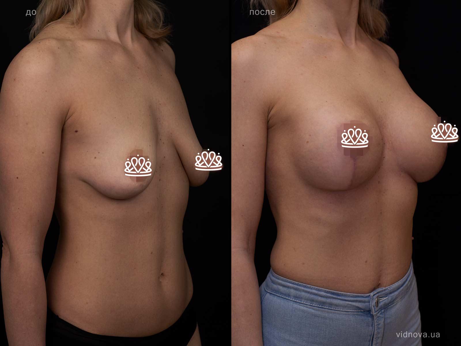 Пластика груди: результаты до и после - Пример №113-1 - Светлана Работенко