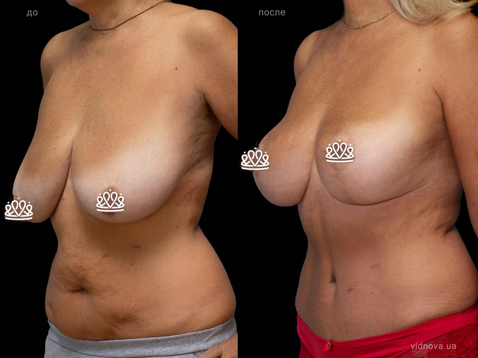 Пластика груди: результаты до и после - Пример №114-1 - Светлана Работенко