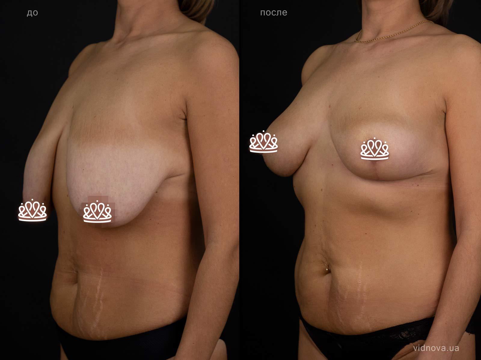 Пластика груди: результаты до и после - Пример №117-1 - Светлана Работенко