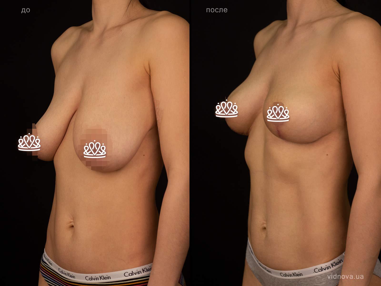 Пластика груди: результаты до и после - Пример №126-1 - Светлана Работенко