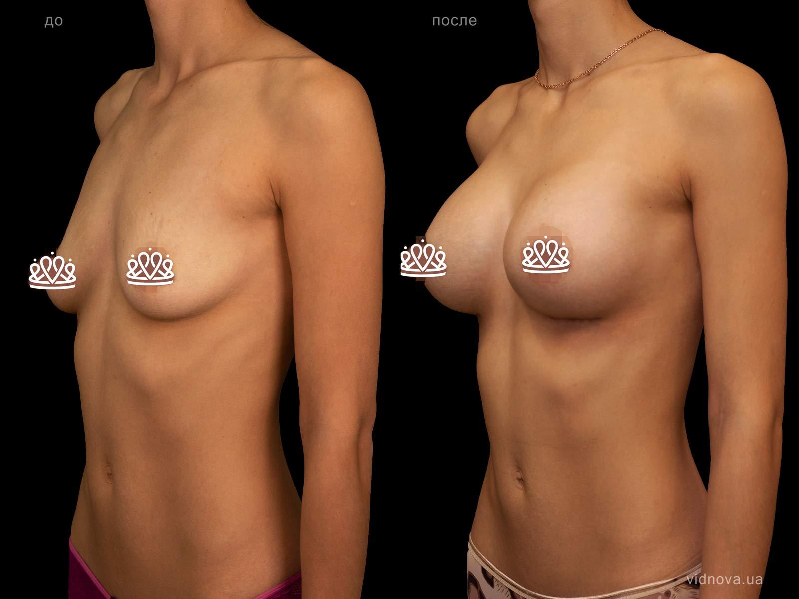 Пластика груди: результаты до и после - Пример №120-1 - Светлана Работенко