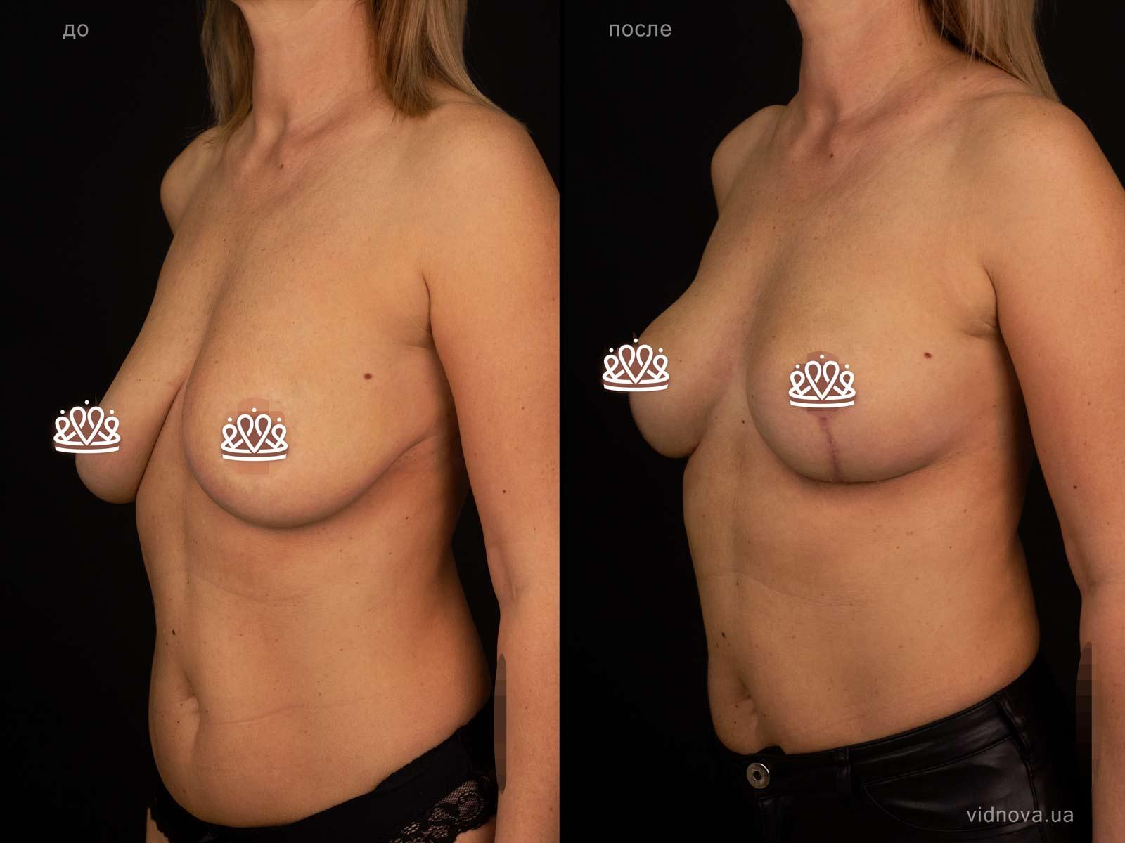 Пластика груди: результаты до и после - Пример №124-1 - Светлана Работенко