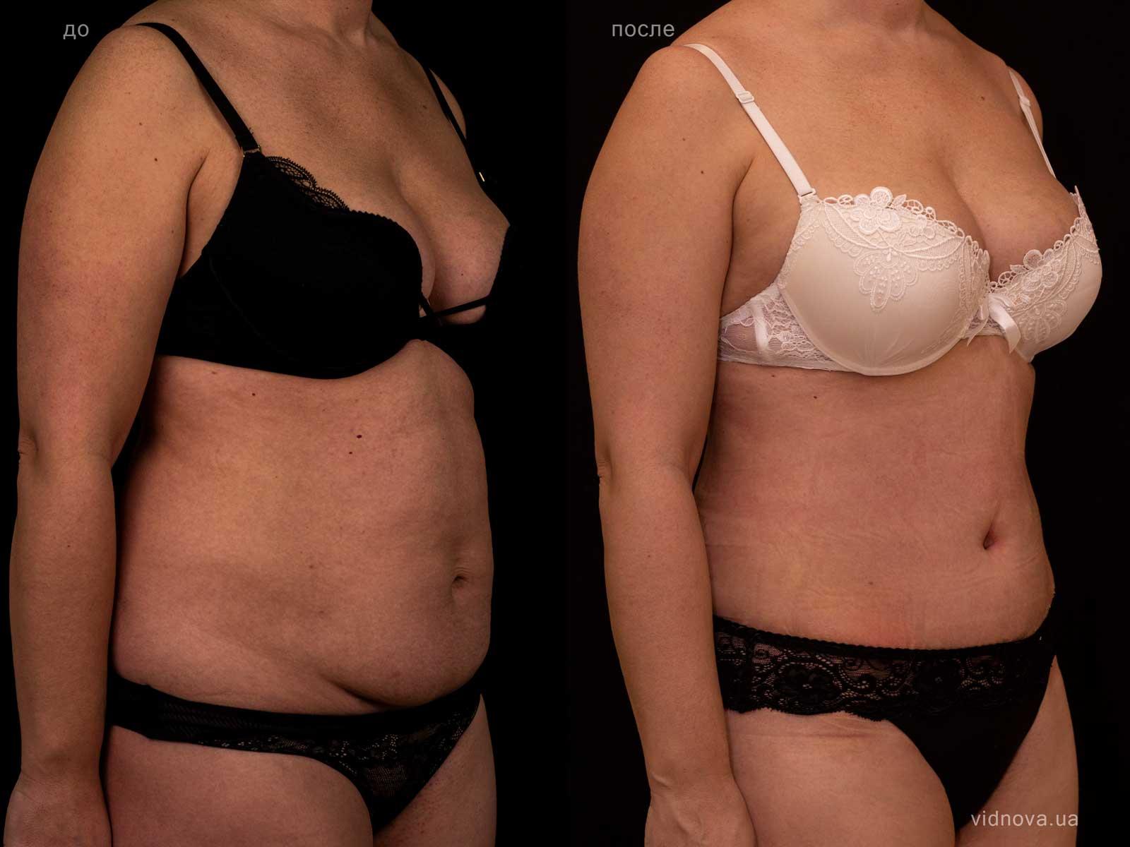 Пластика живота: результаты до и после - Пример №22-1 - Светлана Работенко
