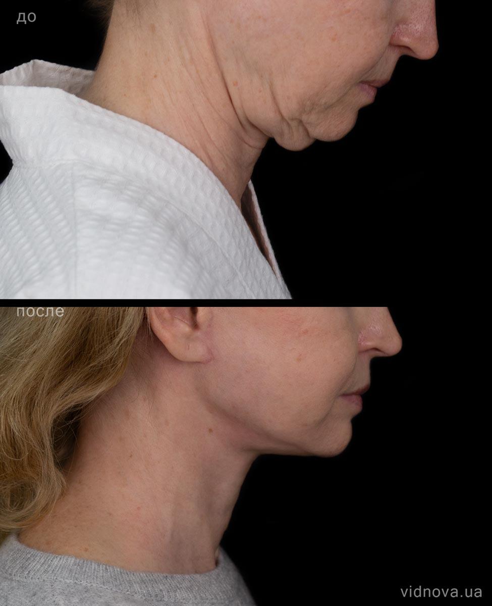 Подтяжка лица и шеи 2s 2