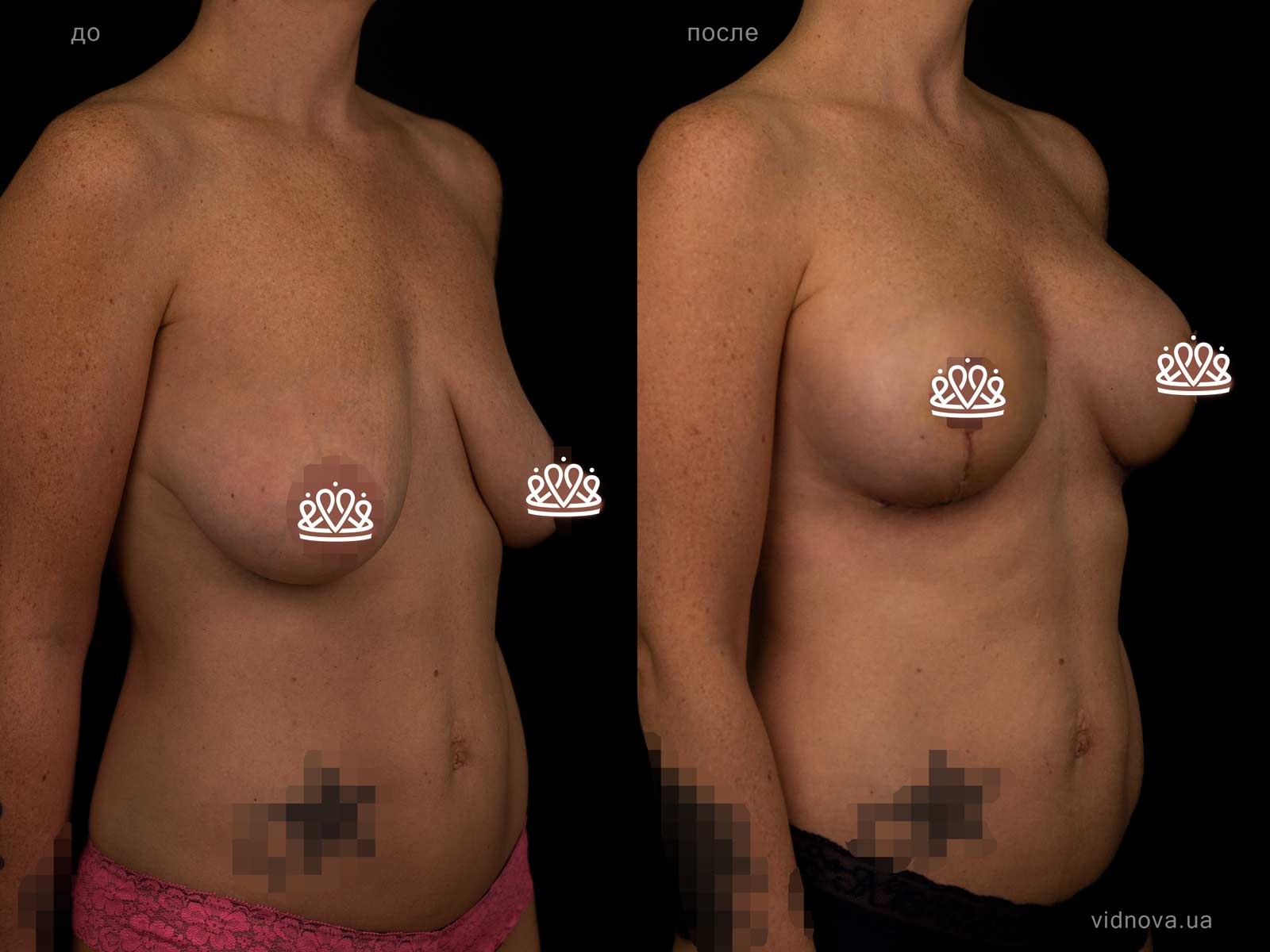Пластика груди: результаты до и после - Пример №125-1 - Светлана Работенко
