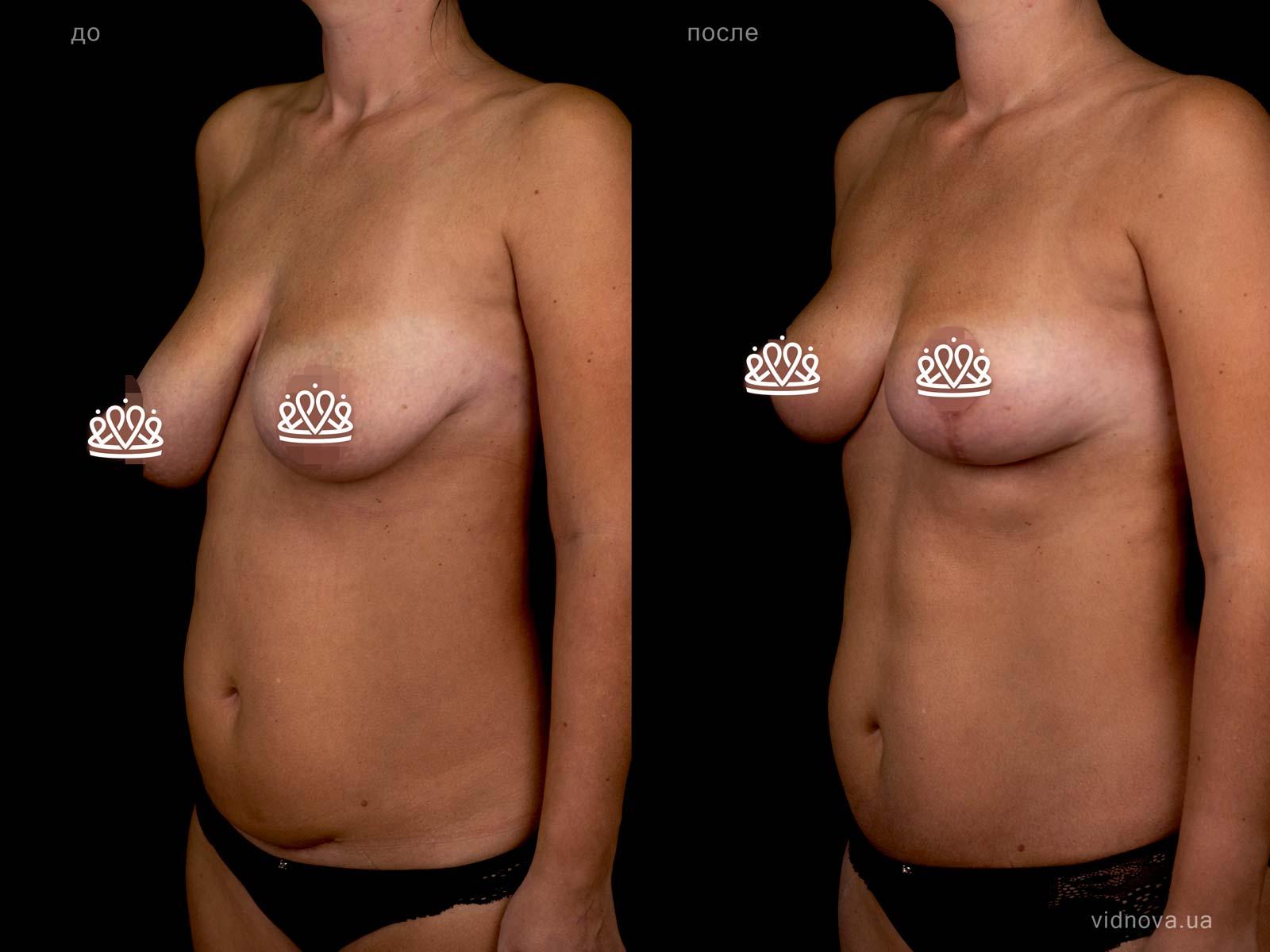 Пластика груди: результаты до и после - Пример №111-2 - Светлана Работенко
