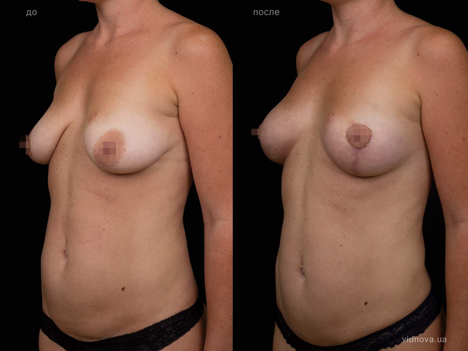 Пластика груди: результаты до и после - Пример №94-1 - Светлана Работенко
