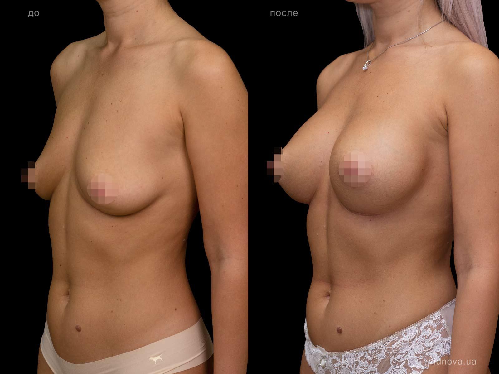 Пластика груди: результаты до и после - Пример №129-2 - Светлана Работенко