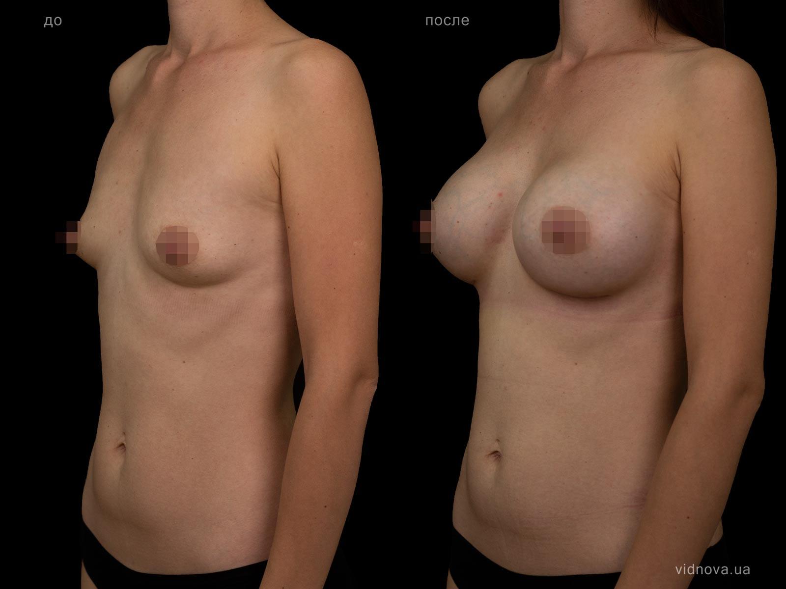 Пластика груди: результаты до и после - Пример №102-1 - Светлана Работенко