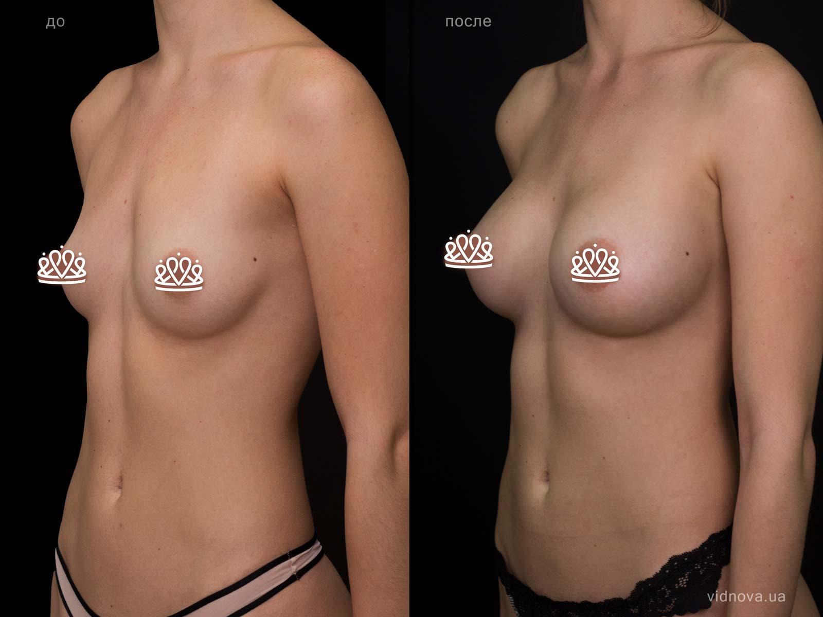 Пластика груди: результаты до и после - Пример №110-1 - Светлана Работенко
