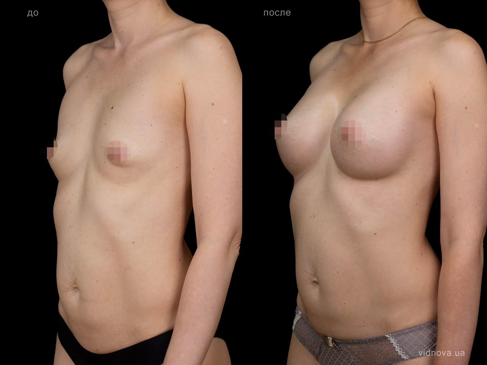 Пластика груди: результаты до и после - Пример №91-3 - Светлана Работенко