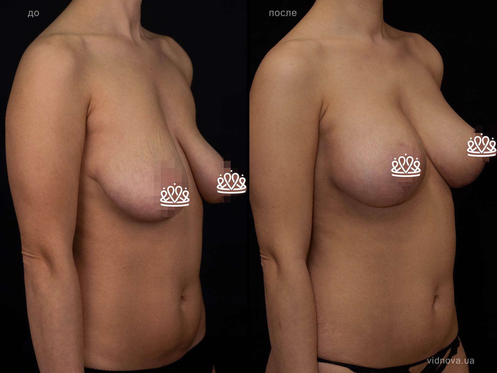Пластика груди: результаты до и после - Пример №116-1 - Светлана Работенко