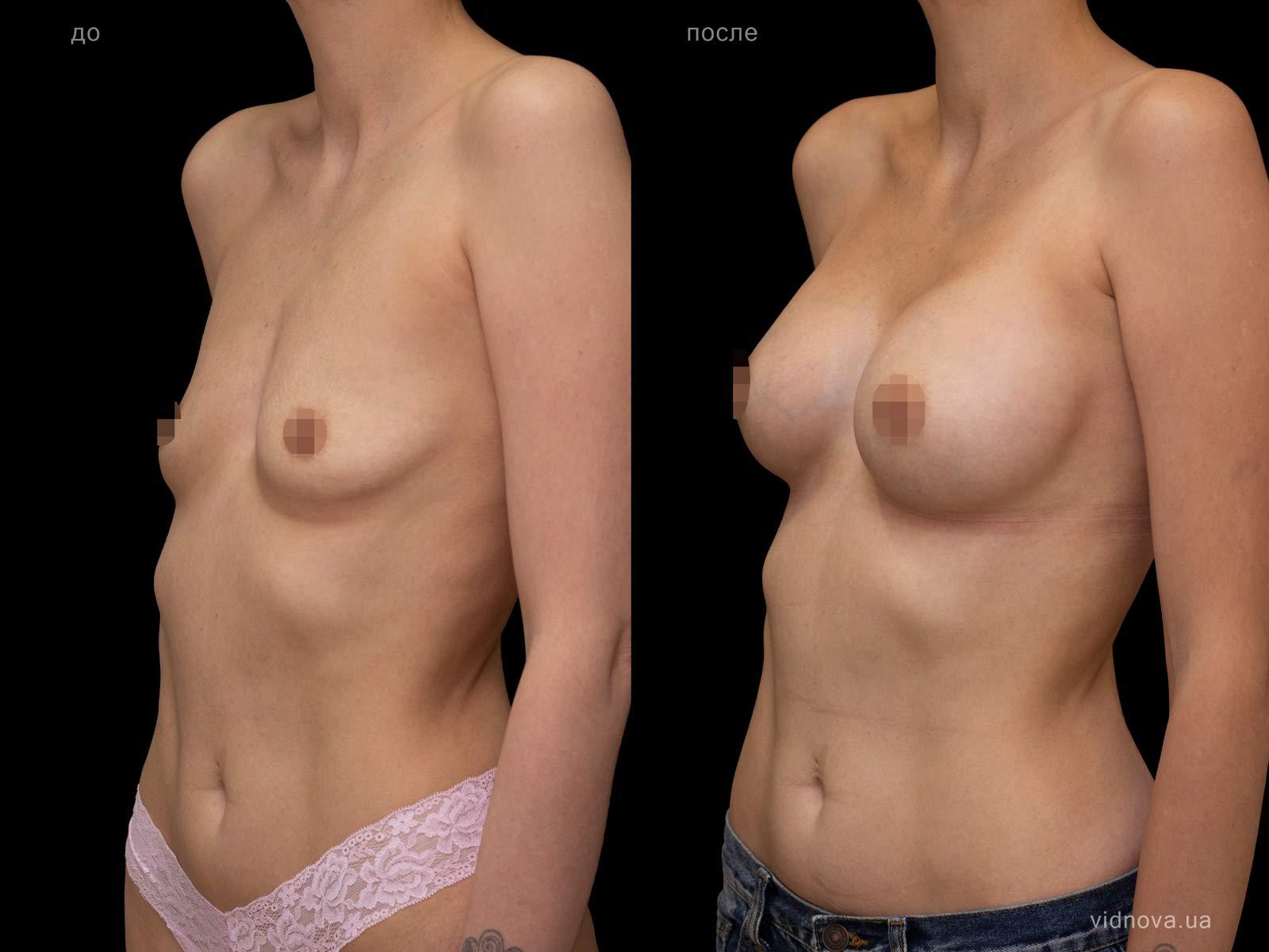Пластика груди: результаты до и после - Пример №96-1 - Светлана Работенко