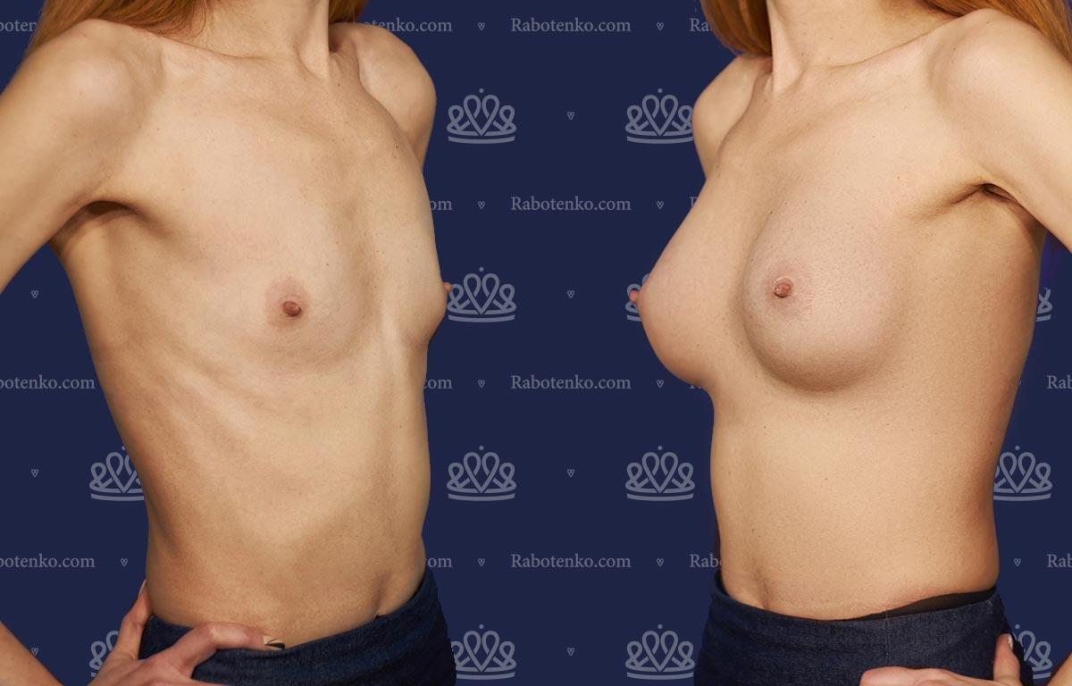 Пластика груди: результаты до и после - Пример №2-0 - Светлана Работенко